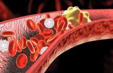 Colesterolo: anche quello buono può essere dannoso