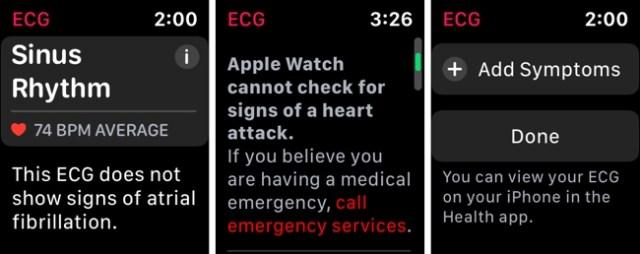 Apple Watch ECG Reading