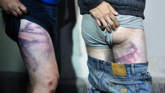 Deux hommes détenus après leur arrestation en marge de manifestations en Biélorussie montrent les marques des coups qu\'ils disent avoir reçus en détention, à leur sortie de prison à Minsk, le 14 août 2020.