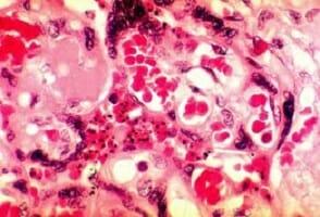 Microplastiche nella placenta umana