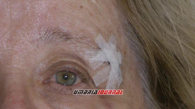 Anziana inciampa in un tombino sporgente, omero fratturato e ferita in faccia
