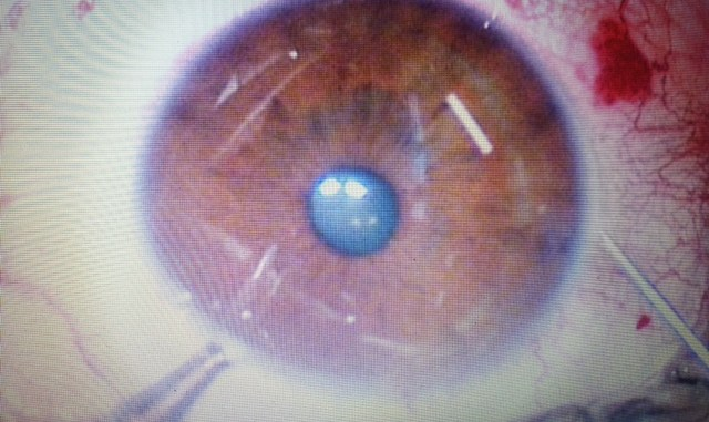 Per curare il glaucoma la terapia ora dura 4 mesi, primo impianto a un perugino