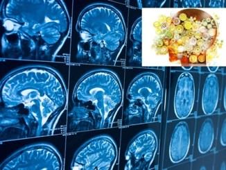 Ospedale Foligno, prestigiosa indagine nazionale sulla neuroriabilitazione