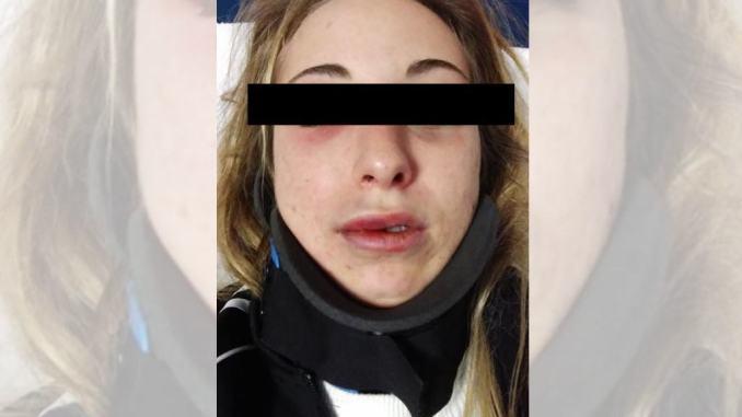 Ragazza di Bastia massacrata di botte, i medici le avrebbero dato 10 giorni di prognosi