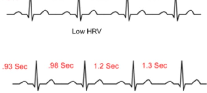 HEART ATTACK PRONE HOROSCOPE OR PALM –A NEW HOPE FOR CURE- RAPID HEART RATE