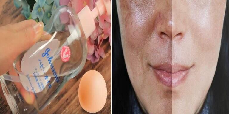 Aprenda como remover manchas e melasmas da pele com óleo de bebê