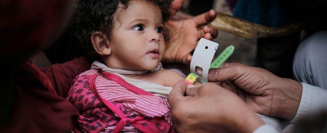 Una nña desnutrida es atendida por un médico en Yemen. Foto: UNICEF/Almang