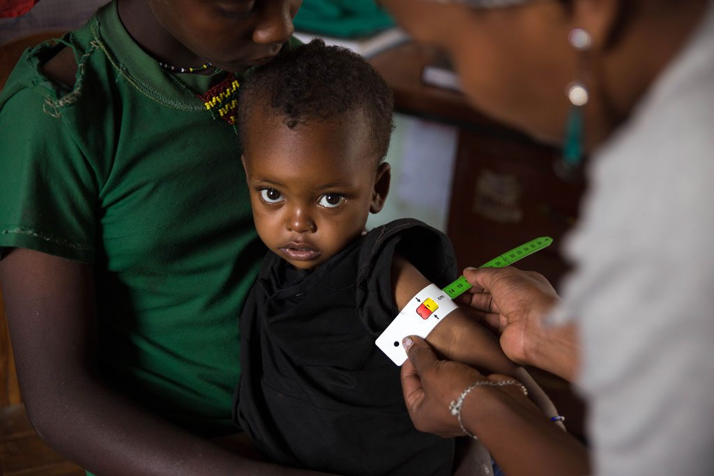 Photo: At the Gedebe Health Post in Halaba Special Woreda (district) in SNNP Region of Ethiopia, 28-month-old Nebila has her mid-upper-arm circumference measured by a health worker. She was diagnosed with severe acute malnutrition and has been receiving treatment including ready-to-use-therapeutic food (RUTF). Photo: UNICEF/UN022074/Ayene