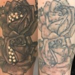 Black Tattoo Laser Tattoo Removal by Underground Tattoo Watford