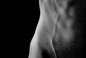 cuerpo incorpóreo - venas - piel