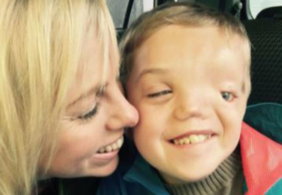 Instagram Remove Picture Of Boy Due To His Disfigurement Our Altered Life 2