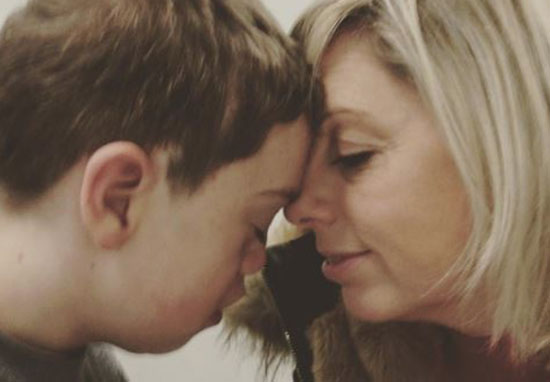 Instagram Remove Picture Of Boy Due To His Disfigurement Our Altered Life 4