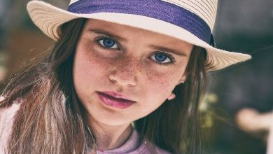 How to Remove Freckles Permanently And Get Spotless Skin