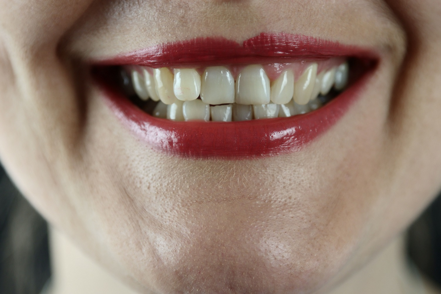 How to have healthier and whiter teeth