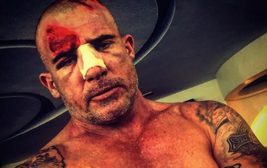 dominic purcell infortunio