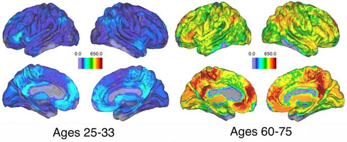 Brain activity UC Santa Barbara