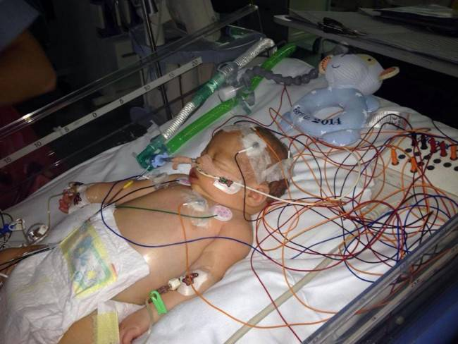 neonato in rianimazione