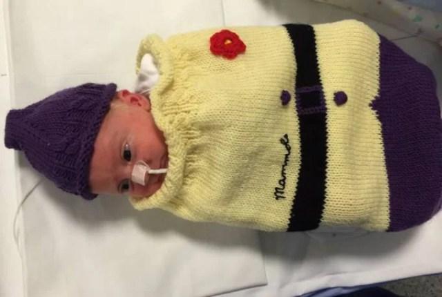 bambini prematuri vestito giallo