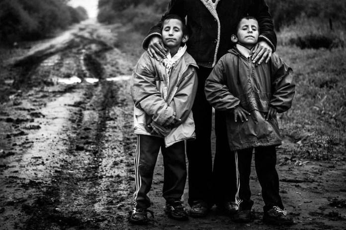 Aldo and Maximiliano Barrios sono 2 gemelli di 11 anni e soffrono di microcefalia congenita.