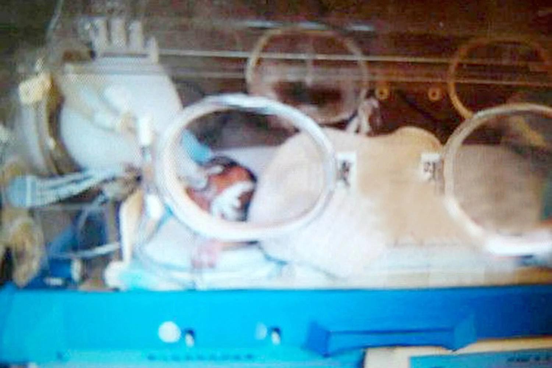 neonato morto torna in vita
