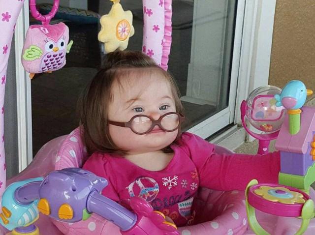 emmy bambina con la sindrome di down 3