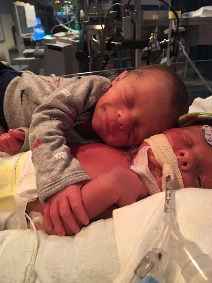 neonato abbraccia gemello malato