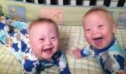 gemelli con la Sindrome di Down