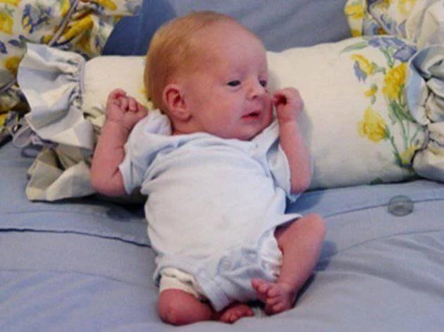 bambino nato con una sindrome rara incurabile