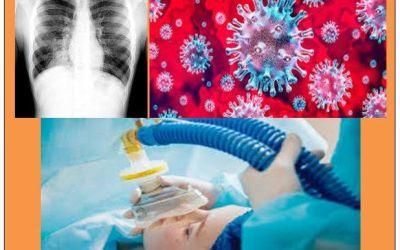 Manejo de Ventilación mecánica en paciente distresado por neumonía por posible Covid-19
