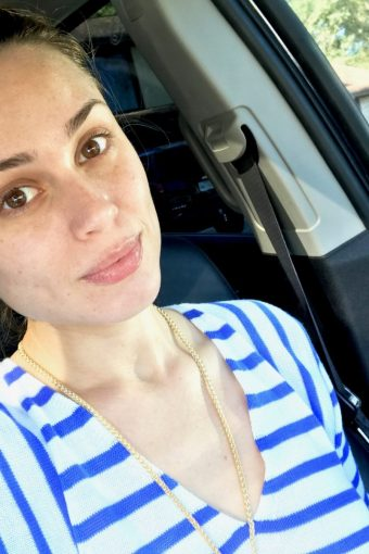 My HydraFacial Review/Results