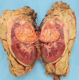 renalis tümörü