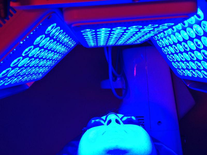 Acne Led Light