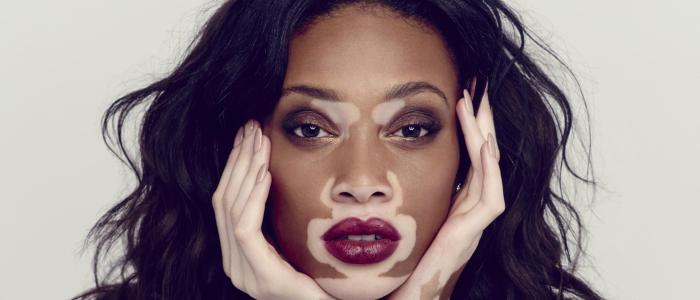 Winnie Harlow Trivia: 23 interesting facts about her!