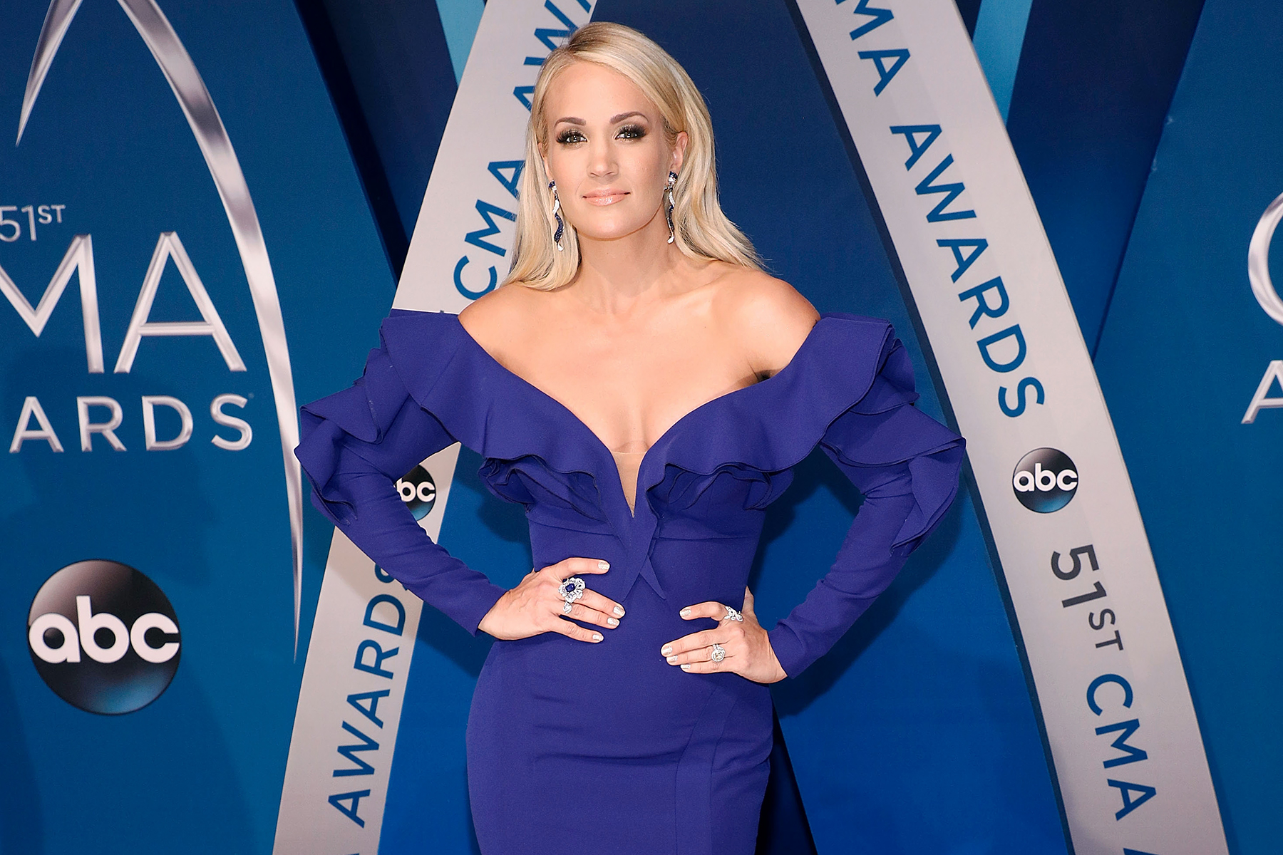 Carrie Underwood Recovering With 40 to 50 Face Stitches After Horrific Fall