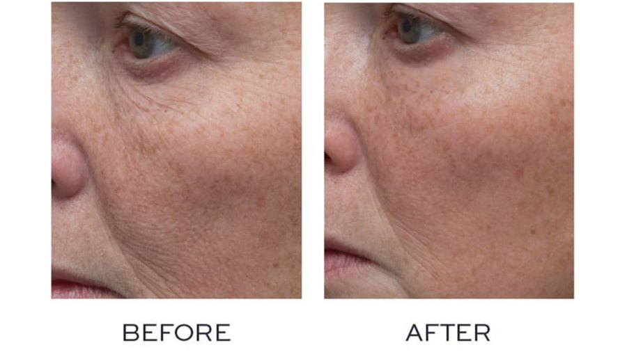 Before-And-After-Nordstrom-Cream