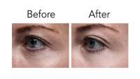 Pronexa Lavish Eyes Anti-Aging Eye Serum Before After