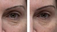 elemis eye cream