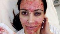 Kim Kardashian Vampire Facial Lawsuit