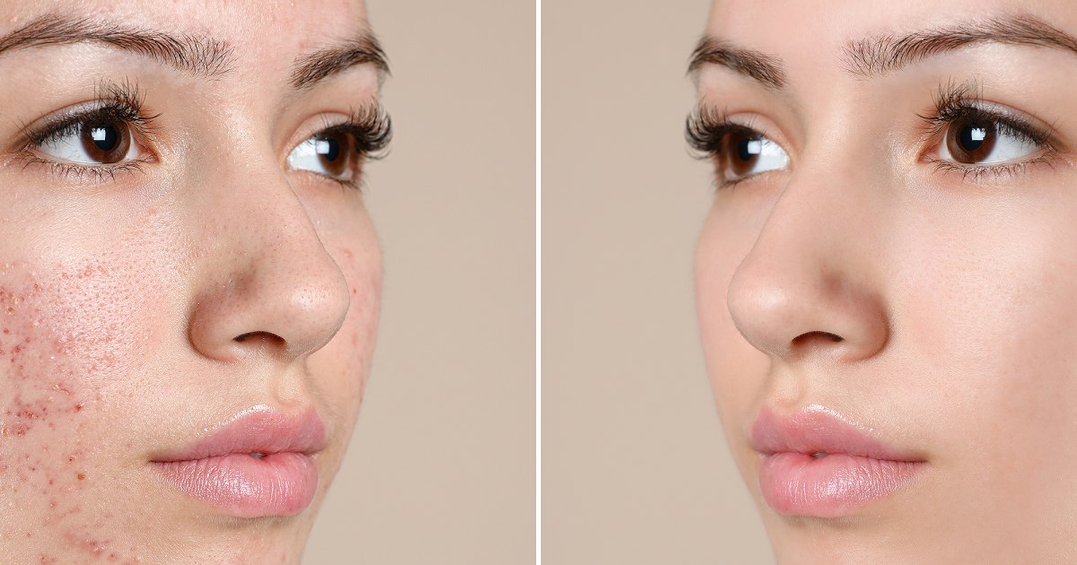 Shoppers Are Ditching Full-Coverage Foundation Thanks to These Exfoliating Pads