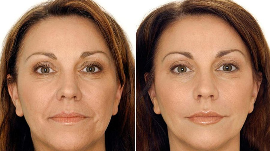 H-Art V-Shape Lifting Face Mask (5 Count) before and after