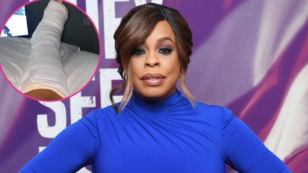 Niecy Nash Celebrity Injuries