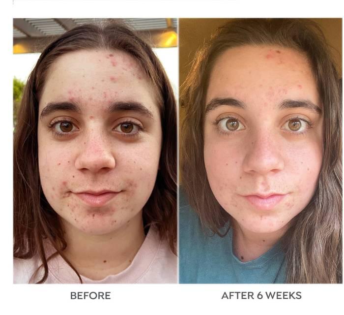 Dr. Zenovia Skincare 5% Traitement localisé contre l'acné au peroxyde de benzoyle