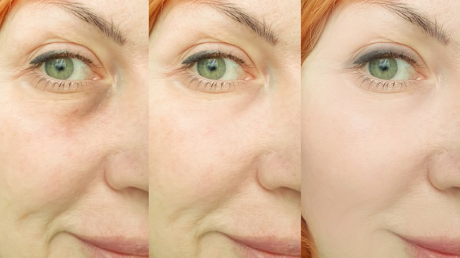 before-after-wrinkles-aging
