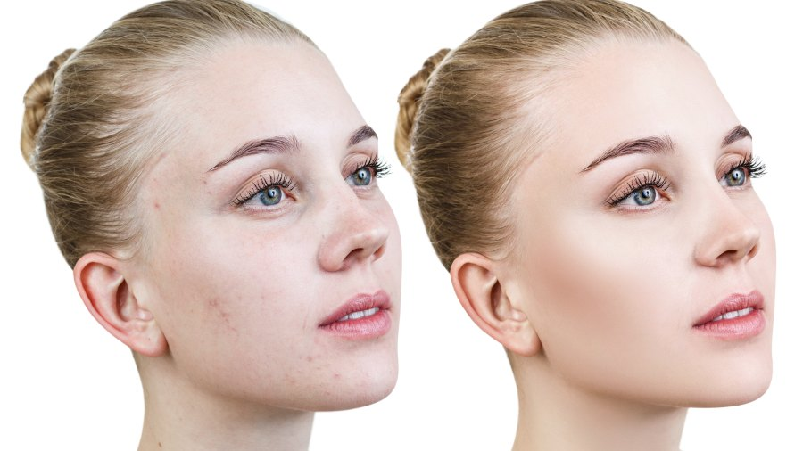 Skincare-Before-After-Stock-Photo