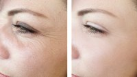 Woman-Before-After-Wrinkles