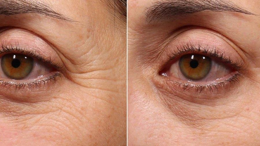 murad-retinol-eye-youth-serum