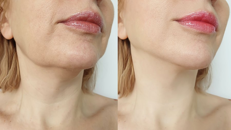 Before-After-Neck-Lift-Stock-Photo