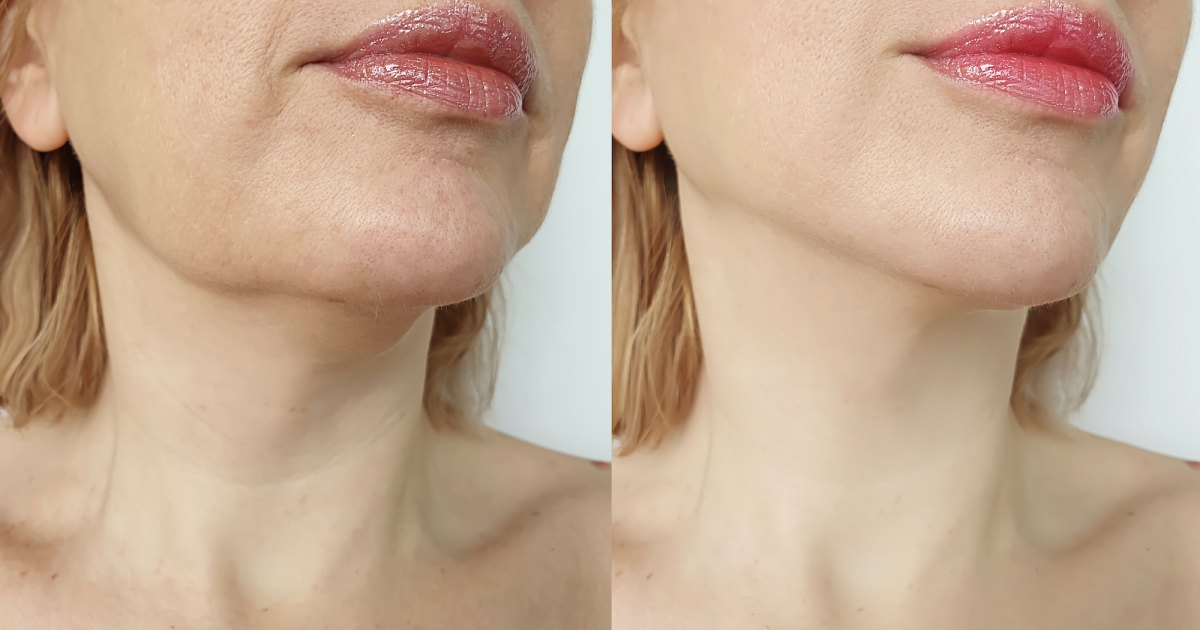 Fight Wrinkles and Sagging Skin With This Neck Firming Lift