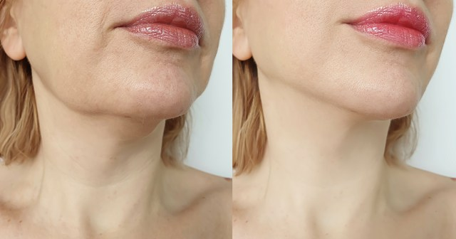 Fight Wrinkles and Sagging Skin With This Neck Firming Lift.jpg