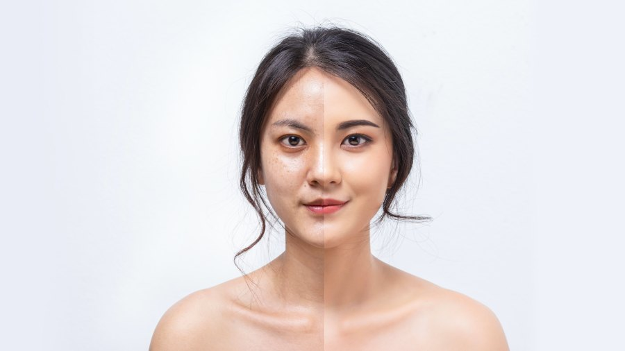 Before-After-Beauty-Stock-Photo